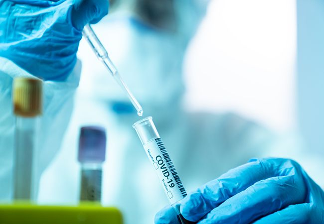 A New Study Evaluated the Accuracy of More Than 60 Coronavirus Antibody Tests. 13 Were a Cut Above the Rest.